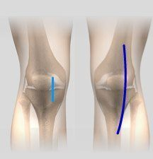 Minimally Invasive Knee Replacement Chula Vista, San Diego